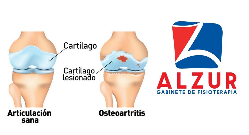 Tratamientos de fisioterapia para la artrosis de rodilla